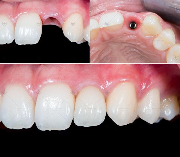 trồng răng implant mất bao lâu