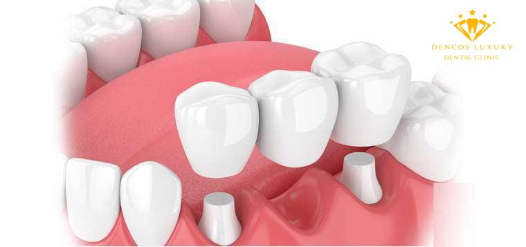 Làm cầu răng sứ giá bao nhiêu