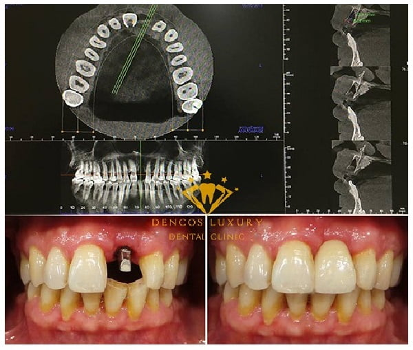 hinh-anh-truoc-sau-cay-ghep-implant-3