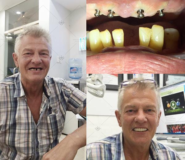 hinh-anh-truoc-sau-cay-ghep-implant-5