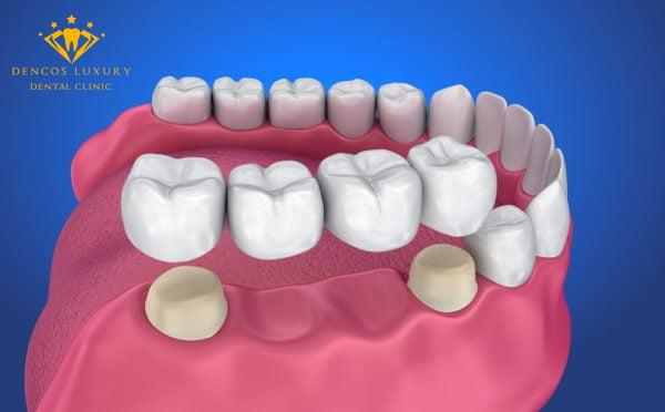 Làm cầu răng sứ có tốt không?