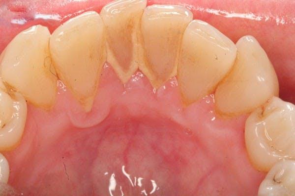 Bàn chải đánh răng bằng điện hay bàn chải bằng tay sẽ tốt hơn?