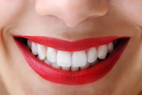 Lưu ý khi bọc răng sứ