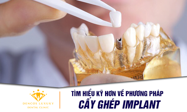 phuong-phap-cay-ghep-implant