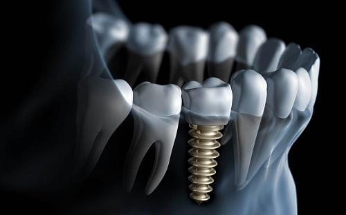 bien-chung-implant