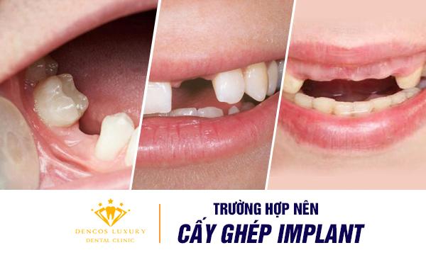 truong-hop-nen-cay-ghep-implant
