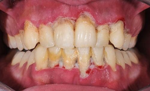cách giữ cho nướu răng khỏe mạnh