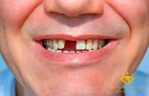 Mất 1 răng nên cấy implant hay trồng răng sứ
