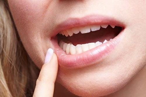 Răng khôn mọc lệch ra má