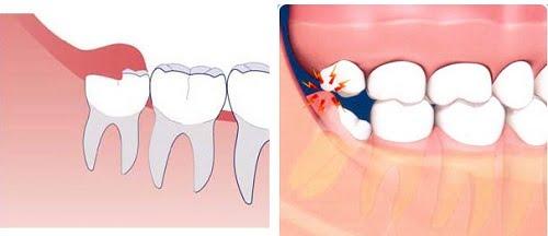 Nhổ răng khôn hàm trên có nguy hiểm không