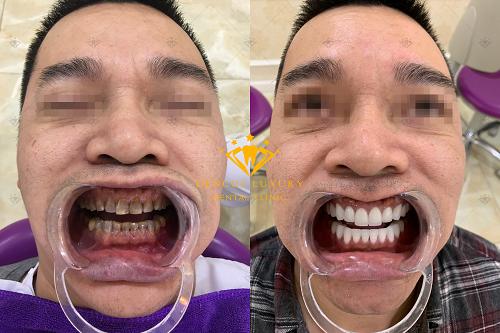 Bọc mão răng sứ
