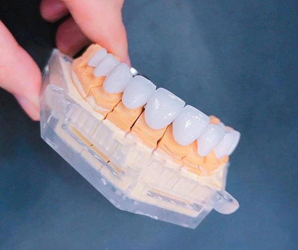 Bọc răng sứ giá bao nhiêu tiền?