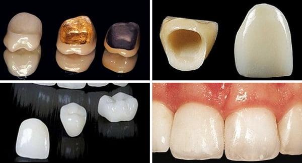 Chia sẻ kinh nghiệm bọc răng sứ