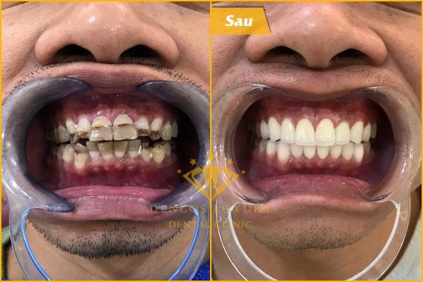 Bọc răng sứ mất bao lâu?