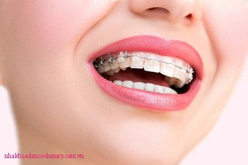 Trường hợp nào nên áp dụng niềng răng vẩu?