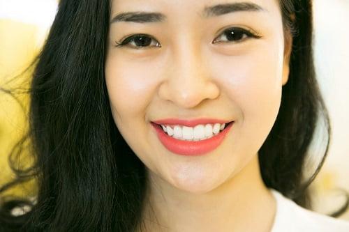 Bọc răng sứ có đẹp không?