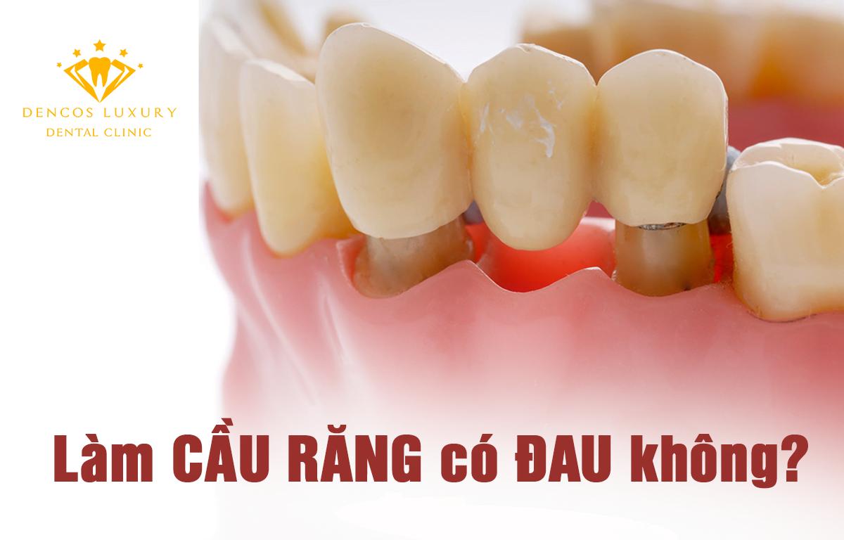 Làm cầu răng có đau không?