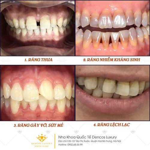 Phục hình răng sứ - Giải pháp chinh phục hàm răng thiếu thẩm mỹ