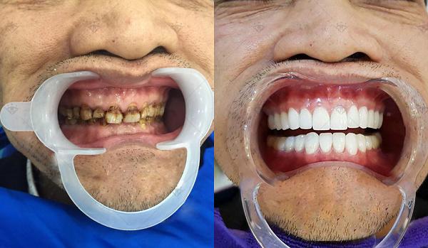 Có nên chụp răng sứ?