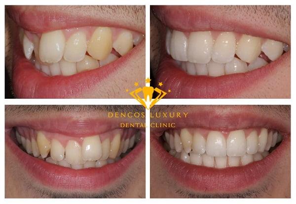 Hình ảnh về làm răng sứ titan