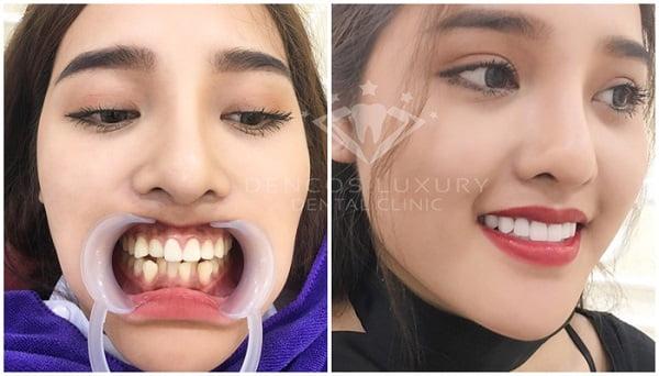 Dịch vụ nha khoa về làm răng sứ