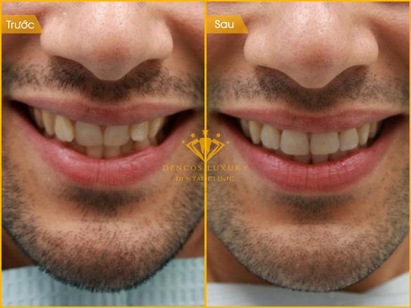Kết quả niềng răng