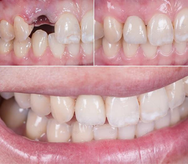 hinh-anh-truoc-sau-cay-ghep-implant-1