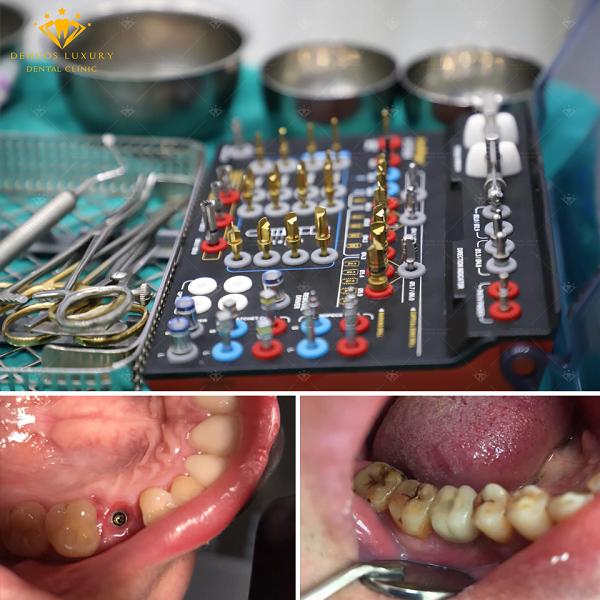 hinh-anh-truoc-sau-cay-ghep-implant-2
