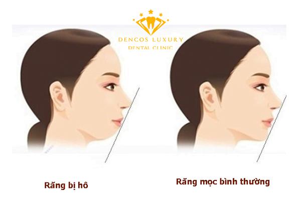 ho-ham-co-nieng-rang-duoc-khong-1