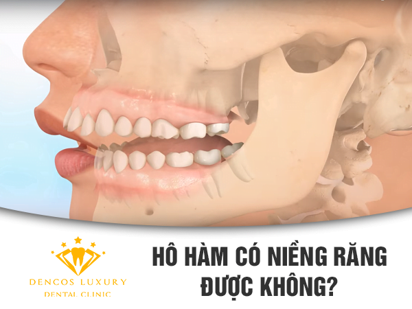 Hô hàm có niềng răng được không?