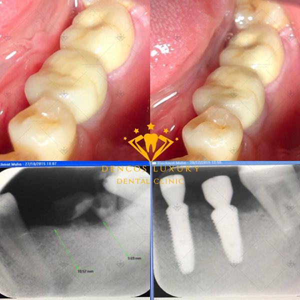 ket-qua-cay-ghep-implant-4