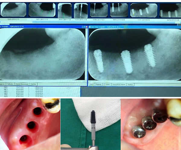ket-qua-cay-ghep-implant-5