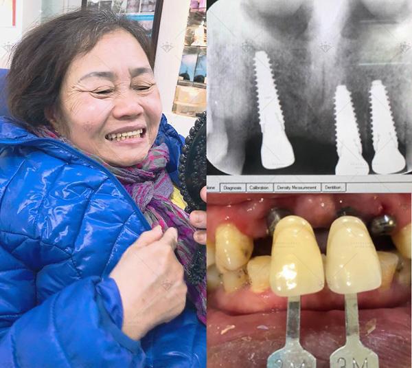 ket-qua-cay-ghep-implant