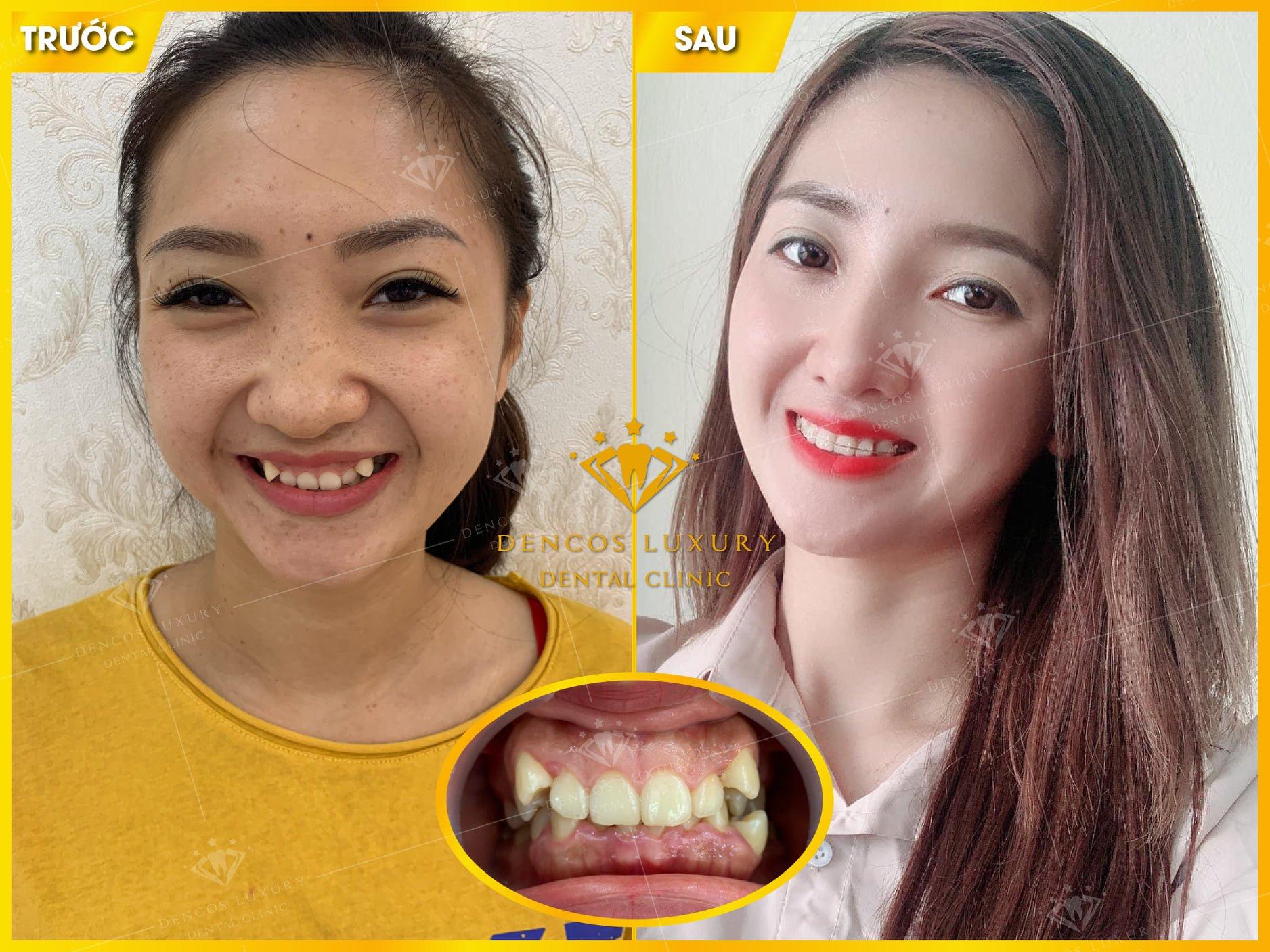 hình ảnh niềng răng