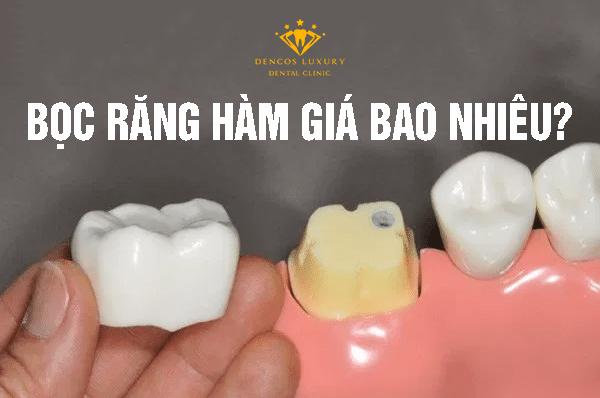 bọc răng hàm giá bao nhiêu
