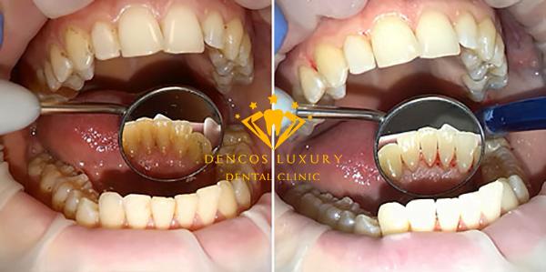 Kết quả lấy cao răng tại Nha khoa Dencos Luxury