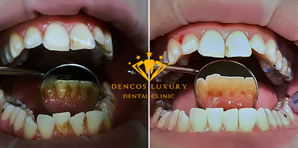 Kết quả lấy cao răng