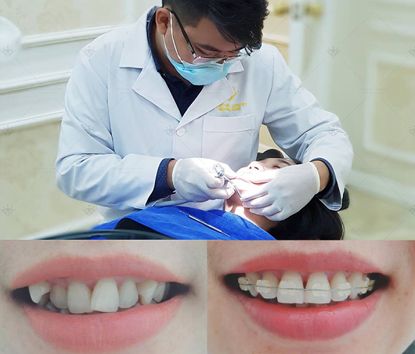 Khi nào nên niềng răng