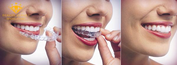 máng nhai chống nghiến răng