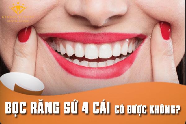 Bọc răng sứ 4 cái có được không