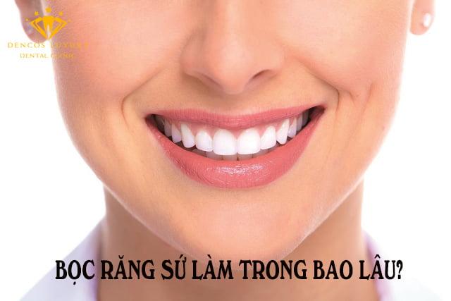 Bọc răng sứ làm trong bao lâu?