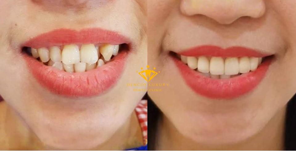 Bọc răng sứ cho răng lộn xộn