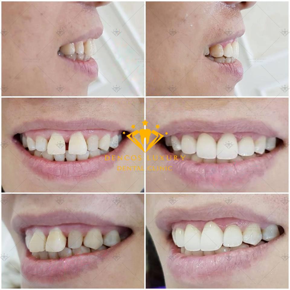 Bọc răng sứ 4 cái