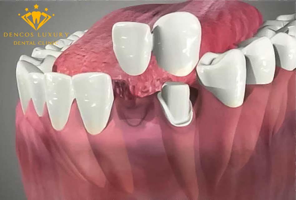 Cầu răng sứ nhảy là gì?