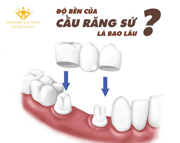 Độ bền cầu răng sứ là bao lâu