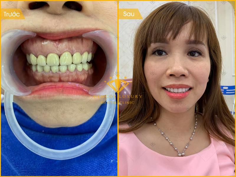 Những chú ý khi bọc răng sứ