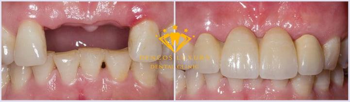 hình ảnh cầu răng sứ