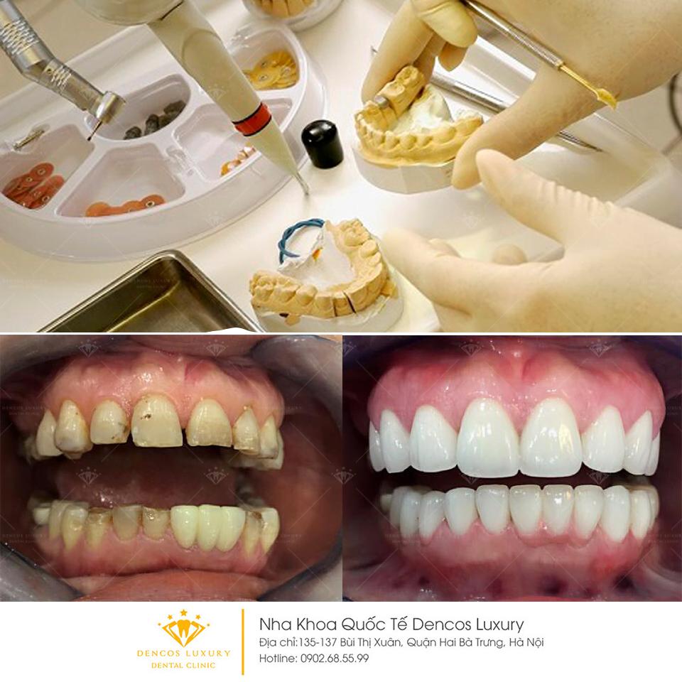 Kinh nghiệm đi bọc răng sứ