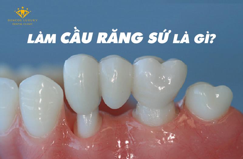 các phương pháp cầu răng sứ