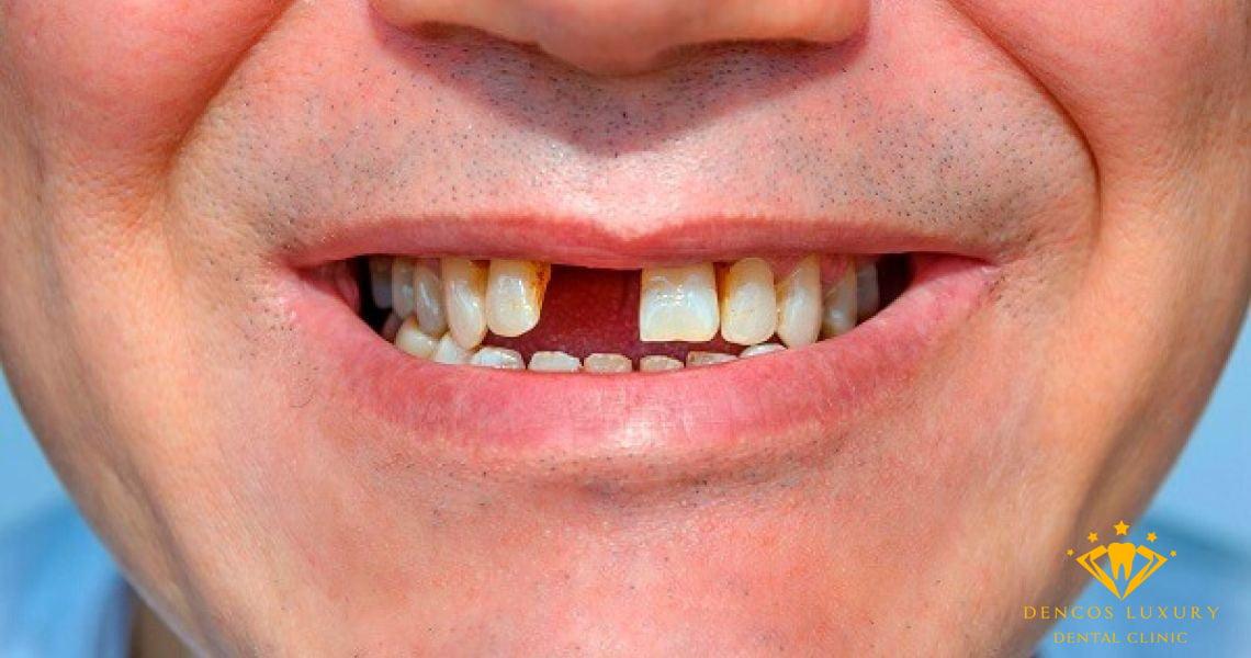 Cầu răng sứ cho răng cửa có được không?
